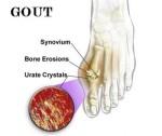 Hindari Bahan Makanan yang Meningkatkan Resiko Penyakit Asam Urat