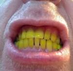 Cara Mengatasi Gigi yang Berwarna Kuning