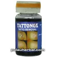 Tattonox Penghilang Tato